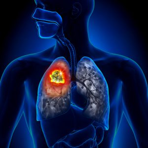 lung-cancer-blog