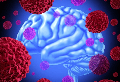 4 Must-Know Facts About the Deadliest Brain Tumor