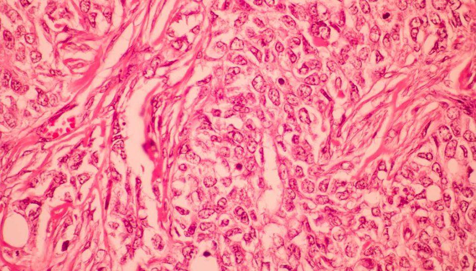 breast cancer metastasis