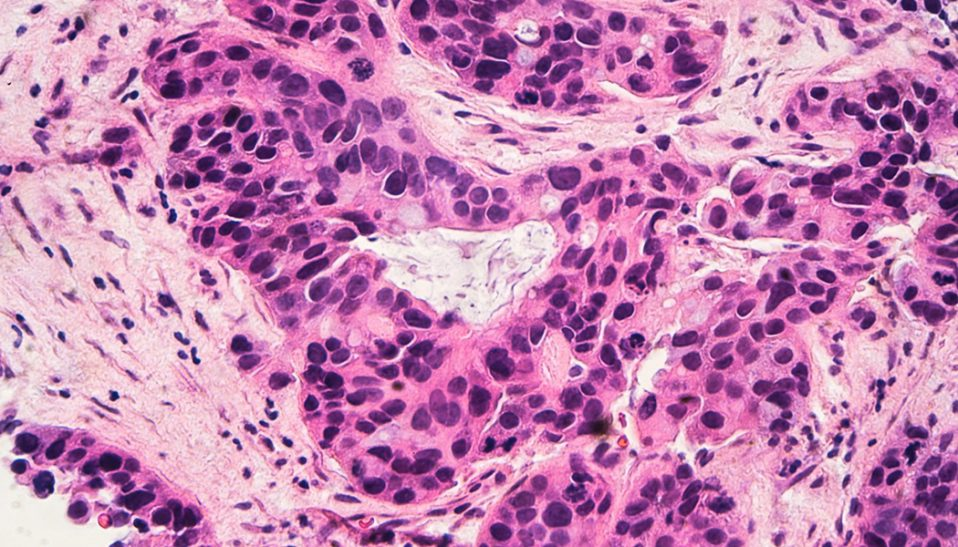 Breast Cancer Linked to Bone Marrow Cells