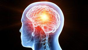 Glioblastoma Multiforme-the Deadliest Form of Brain Cancer